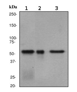 Western blot - Liver Carboxylesterase 1 antibody [EP1375Y] (ab68190)