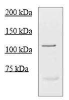 Western blot - Progesterone Receptor antibody (ab68195)