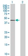 Western blot - HOMER2 antibody (ab68214)