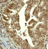 Immunohistochemistry (Formalin/PFA-fixed paraffin-embedded sections) - CAMKIV antibody [EP2565AY] (ab68218)