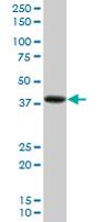 Western blot - PDLIM2 antibody (ab68220)