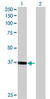 Western blot - Vinexin antibody (ab68222)