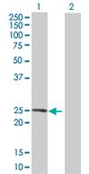 Western blot - LRRC29 antibody (ab68226)