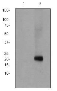 Western blot - CD3 zeta (phospho Y142) antibody [EP265(2)Y] (ab68235)