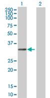 Western blot - TCEAL6 antibody (ab68242)