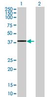 Western blot - TCEAL4 antibody (ab68244)