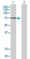 Western blot - KLHL4 antibody (ab68246)