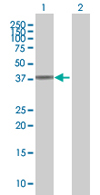Western blot - ARPM1 antibody (ab68250)