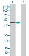 Western blot - RNF113B antibody (ab68253)