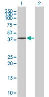 Western blot - H00085403-B01 antibody (ab68255)