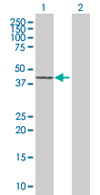 Western blot - Sin3b antibody (ab68257)