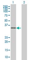 Western blot - ZNF557 antibody (ab68259)