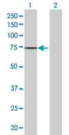 Western blot - ZNF571 antibody (ab68261)