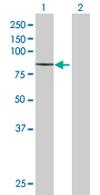 Western blot - ZNF624 antibody (ab68263)