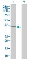 Western blot - ZNF101 antibody (ab68291)