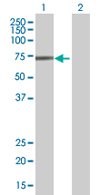 Western blot - ZNF471 antibody (ab68294)