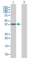 Western blot - MFI2 antibody (ab68295)