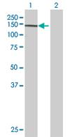 Western blot - RALGDS antibody (ab68296)
