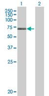 Western blot - RBM6 antibody (ab68297)