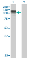 Western blot - CC2D1A antibody (ab68302)