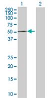 Western blot - ACP6 antibody (ab68303)