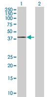Western blot - PANK3 antibody (ab68304)