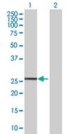 Western blot - PRTFDC1 antibody (ab68305)