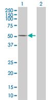 Western blot - AMDHD2 antibody (ab68307)