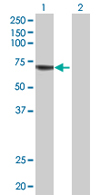 Western blot - Acyloxyacyl Hydrolase  antibody (ab68309)