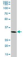 Western blot - C1GALT1C1 antibody (ab68310)