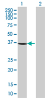 Western blot - AASDHPPT antibody (ab68316)