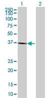 Western blot - BDH1 antibody (ab68321)