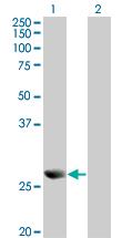 Western blot - Peroxiredoxin 4 antibody (ab68344)