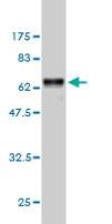 Western blot - BAFF antibody (ab68345)