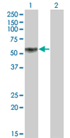 Western blot - KLF12 antibody (ab68347)