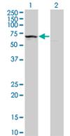 Western blot - KLHDC4 antibody (ab68350)