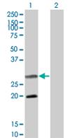 Western blot - Smac / Diablo antibody (ab68352)