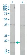 Western blot - CCNL1 antibody (ab68353)