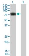 Western blot - TEM7 antibody (ab68354)