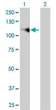 Western blot - FGFR1 antibody (ab68419)