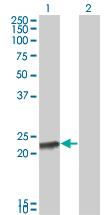 Western blot - Recoverin antibody (ab68420)