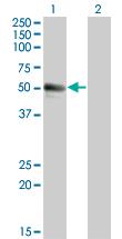 Western blot - CD43 antibody [3G8] (ab68421)