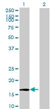 Western blot - ZNHIT1 antibody (ab68467)