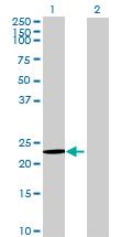 Western blot - ATP5H antibody (ab68469)