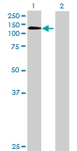 Western blot - PITRM1 antibody (ab68502)
