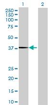 Western blot - ST6GALNAC2 antibody (ab68510)