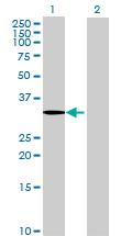 Western blot - SDS antibody (ab68536)
