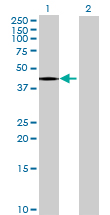 Western blot - LECT1 antibody (ab68542)