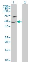 Western blot - HHLA2 antibody (ab68548)