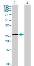 Western blot - PROSC antibody (ab68549)
